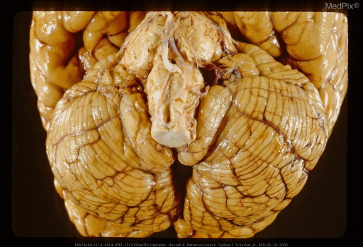 Ventral surface of brain showing bilateral tonsilar herniation. Same case as Figure 173, 29439