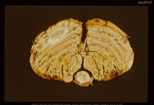 Section through cerebellum and medulla showing acute herniation contusions on ventral surface of cerebellum.