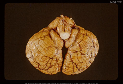 Cerebellum and brain stem showing tonsillar herniation. Same case as Figure 169, 29435.