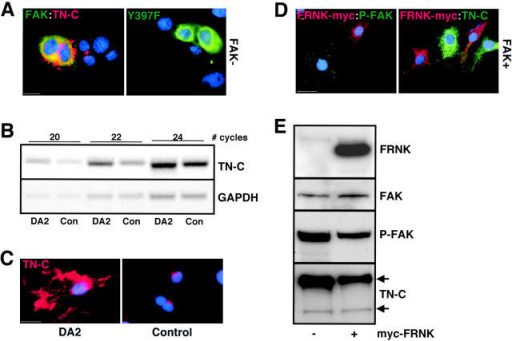 Activated FAK is required for TN-C expression. (A) Immunostaining for wild-type FAK fusion protein (left, green), or a kinase-dead FAK mutant (Y397F; right, green), as well as TN-C (red), in transiently transfected FAK- (−) fibroblasts. Nuclei are stained blue with DAPI. Bar, 15 μm. (B) Semi-quantitative RT-PCR assays to assess the steady-state levels of TN-C and GAPDH mRNA levels in DA2 and control cells. The number of PCR cycles used to amplify TN-C mRNA is indicated. (C) Photomicrographs showing DA2 and control cells plated onto FN after immunostaining for TN-C (red). Cell nuclei were visualized with DAPI (blue). Bar, 30 μm. (D) Photomicrographs showing FAK–wild-type (+) cells replated onto FN after transient transfection with FRNK. Cells in the left panel were stained for the c-myc/FRNK fusion protein (red) and activated FAK (Y397 phospho-FAK–specific antibody; green). Cells in the right panel were stained for the c-myc/FRNK fusion protein (red) and TN-C (green). Cell nuclei were visualized with DAPI (blue). Bar, 30 μm. (E) Western immunoblotting for FRNK, total FAK, phosphorylated FAK and TN-C in cells transiently transfected with a control vector (−), or with a plasmid encoding a c-myc/FRNK fusion protein (+).