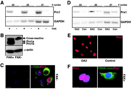 Prx1 expression depends on activated FAK. (A) Semi-quantitative RT-PCR assays to assess steady-state levels of Prx1 and GAPDH in FAK–wild-type (+) and - (−) fibroblasts. The number of PCR cycles used to amplify Prx1 mRNA is indicated. (B) Western immunoblots for Prx1a and Prx1b (top) and α-actin (bottom) in FAK–wild-type (+) and - (−) fibroblasts. An additional cross-reactive band was also detected in both samples. (C) Representative fluorescence micrographs assessing Prx1 immunoreactivity in FAK- (−) fibroblasts (left), or in FAK- fibroblasts transiently transfected with the IL2R-FAK wild-type fusion protein (right). FAK is shown in green, whereas Prx1 is shown in red. Nuclei are visualized by DAPI staining. Bar, 15 μm. (D) Semi-quantitative RT-PCR assays were used to assess the steady-state levels of Prx1 and GAPDH mRNA levels in DA2 cells (i.e., FAK- cells stably transfected with FAK) and its control line (i.e., FAK- cells stably transfected with pcDNA3.1). The number of PCR cycles used to amplify Prx1 mRNA is indicated. (E) Photomicrographs showing DA2 cells and its control line plated onto FN after immunostaining for Prx1 protein (red). Bar, 30 μm. (F) Photomicrographs showing FAK–wild-type (+) cells replated onto FN followed by immunostaining for Prx1 (left). FAK–wild-type cells were transiently transfected with the c-myc/FRNK fusion protein (right), and then stained for FRNK using c-myc antibody (green) and for Prx1 protein (red). Cell nuclei were visualized with DAPI (blue). Bar, 15 μm.