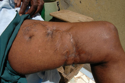 The thigh of a Senegalese fisherman forty years after a shark attack.
