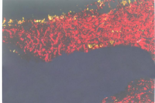 Fascia distracted at 1 mm/d with 10% increase in tibia length under the polarization microscopy (Original magnification 10 × 10). The deep fascia mainly consisted of collagen type I (red), and a basal collagen type II (yellow) distribution was detected in layers D1 and D2.