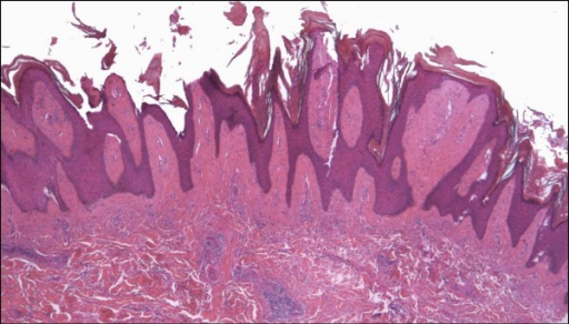 Hyperkeratotic (verrucous) Kaposi sarcoma. A plaque stage lesion from the lower leg is surfaced by an epidermis showing verruciform acanthosis and hyperkeratosis, with fibrosis of the upper dermis (H&E stain).