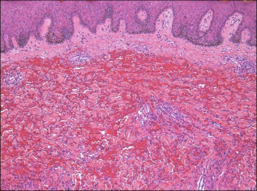 Ecchymotic Kaposi sarcoma. The spindled cell proliferation in this example is somewhat obscured by the extensive purpura.
