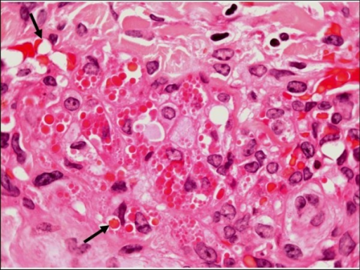 "Plaque stage Kaposi sarcoma. Large numbers of intracellular and extracellular eosinophilic hyaline globules are visible in this field (H&E stain). The arrows indicate so-called ""autolumination"", with paranuclear vacuoles containing erythrocytes."