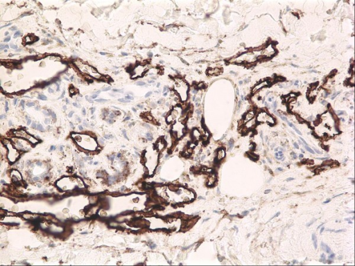 A completely regressed Kaposi sarcoma lesion still retains a modest amount of abnormal dermal microvessels, as evidenced by this D2-40 immunostain. D2-40 is a marker of lymphatic endothelium.