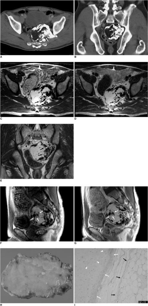Chondrolipoma in pelvic cavity in 55-year-old man.A, B. Transverse (A) and coronal (B) CT images show 8 cm, well-defined mass occupying left side of presacral space of pelvic cavity. Mass seems to have long stalk arising from left gluteus medius muscle. Stalk traverses along surface of left iliac bone, and further passes through left sciatic foramen, and finally connects with mass. Mass is mainly composed of fatty tissue and calcification. Note that calcifications in mass are located peripherally in linear and rosary pattern, with most of stalk becoming calcified. There are some focal areas of intermediate attenuation (arrows) between fat tissue and calcification, which corresponds to chondroid tissue histologically.C-E. Plain T1-weighted transverse (C), T2-weighted transverse (D), T2-weighted coronal (E) MR images without fat suppression show same mass mainly composed of hyperintense areas and signal void areas on both T1- and T2-weighted images which represent fatty tissue and calcification, respectively. Also seen are focal areas of intermediate signal intensity (arrows), which corresponded to chondroid tissue, as seen on CT images.F, G. Gadolinium-enhanced T1-weighted sagittal MR images without fat suppression, obtained 30 seconds (F) and 3 minutes (G) after contrast injection, show same fatty mass with extensive calcifications. Note focal areas of intermediate signal intensity around calcifications (arrows) in F become isointense as with surrounding fatty tissue in G. This represents delayed enhancement.H. Cut surface of resected specimen shows 13 cm, yellowish mass with whitish area in upper portion, which inidcates that this mass is composed of yellowish fatty tissue and whitish calcification.I. Photomicrograph of resected specimen indicates mature, fatty (black arrows), chondroid (white arrows), and fibrous (white arrowheads) tissues (Hematoxylin & Eosin staining, ×100). These findings are consistent with chondrolipoma.