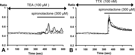 Time courses for the spironolactone-induced [Ca2+]i dynamics under channel blockers. (A) Effect of tetraethylammonium (TEA: 100 µM). (B) Effect of tetrodotoxin (TTX: 100 nM).