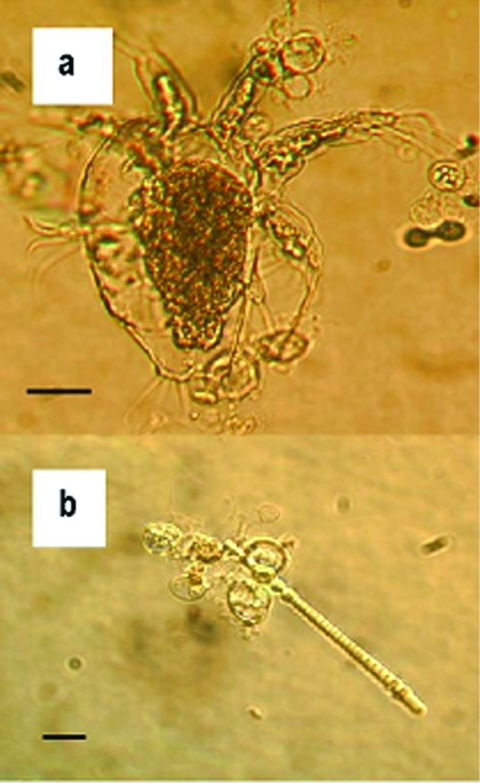 Zoosporangia of strain 98-1810/3 visible as transparent spherical bodies growing in lake water on (a) freshwater arthropod and (b) algae. Bars = 30 μM.