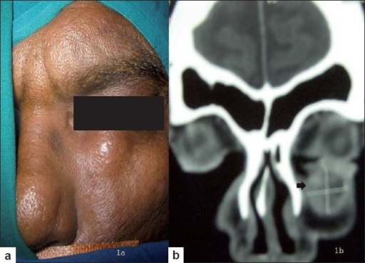 (a) Clinical image with left infraorbital swelling. (b) CT scan: paranasal sinuses showing well-defined rounded cystic lesion (shown with arrow) in the left infraorbital region, eroding the maxilla with focal thickening of left maxillary sinus mucosa