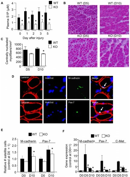 SphK1 disruption and S1P deficiency impairs muscle regeneration and SC recruitment.NTX injury was performed in WT C57BL/6 mice and SphK1 KO mice in the C57BL/6 background. Blood plasma and gastrocnemius muscles were harvested at different time points after injury. A) Plasma levels of WT and KO mice. B) Representative H&E stained frozen muscle sections of WT and SphK1 KO mouse muscles at the point of maximal injury. Scale bar = 50 microns. C) Fiber counts at days 5 and 10. D) Representative immunofluorescence staining on injured C57 BL/6 muscle sections with Hoechst (blue) for nucleus, laminin (red) for basal lamina and Pax-7 (green) or M-cadherin (green) for SCs. Arrow shows merged signals. E) Quantitation of SCs, identified by sublaminar mononucleated cells expressing Pax-7 or M-cadherin in WT and SphK1 KO muscles at baseline (day 0) and 10 days after injury. * p≤0.05 (KO at day 10 compared to WT at day 10 for both markers). F) Gene expression of SC markers (Pax-7, M-cadherin and c-Met) in uninjured (D0) and injured muscles at 5 and 10 days post injury. Data are expressed as means ± SD; n = 4 for immunostained cryosections; n = 3 for Western blot analysis; n = 3–5 for qRT-PCR; * indicates a significant difference between WT and KO at that time point, p≤0.05.