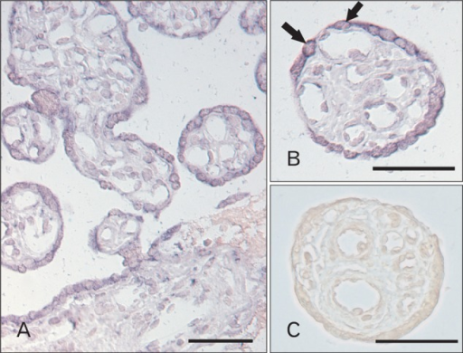 In situ hybridization of sodium-myo-inositol cotransporter (SMIT) in human placenta. (A, B) Cytoplasmic staining of SMIT antisense riboprobe was mainly in the villous trophoblast (arrows). Some endothelial cells and connective cells were weakly stained. (C) As a negative control, no specific staining of SMIT sense riboprobe was seen. Scale bars=50 µm (A-C).