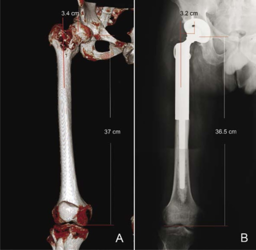 Postoperative assessment of prosthesis. A male, 31-year-old patient with chondrosarcoma in the proximal femur. Preoperative volume rendering images (A) and postoperative anterior-posterior plain film (B) demonstrate that the length and offset were accurately reconstructed.