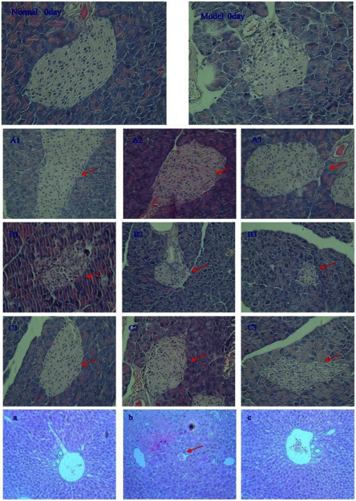 Effect of DPM on STZ-induced experimental damage to the pancreas and the liver, H&E staining, magnification, ×200.(A1, 2, 3): Control pancreas; (B1, 2, 3): Diabetic mice pancreas; (C1, 2, 3): Diabetic mice+DPM (150 mg/kg b.w.) pancreas; (a): Control liver; (b): Diabetic mice liver; (c): Diabetic mice+DPM (150 mg/kg b.w.) liver.