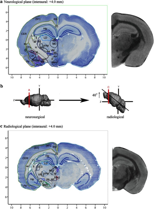 Representative sections reconstructed from the volume rendered brain model of the degu with neurosurgical (a) and radiological (c) stereotaxic coordinates. Nissl images with annotations are provided in the left portion of each panel and MR images taken from the corresponding levels are provided in the right portion of each panel. Locations with respect to the interaural line are indicated in parenthesis of each Nissl image. b The positional differences between neurosurgical (left) and radiological (right) stereotaxic coordinates. The radiological coordinates contain a horizontal zero axis that passes through the AC–PC line (Wright and Kern 1992). This axis results in an anterior shift of 40 degrees in radiological coordinates relative to neurosurgical coordinates. Lines A and C in b indicate approximate level of sectioning of Nissl images in a and c, respectively. AH anterior hypothalamic area, BL basolateral amygdaloid nucleus, BM basomedial amygdaloid nucleus, cc corpus callosum, Ce central amygdaloid nucleus, CER cerebral cortex, Cl claustrum, cp cerebral peduncle, CPu caudate putamen, DLG dorsal lateral geniculate nucleus, ec external capsule, f fornix, fi fimbria, fr fasciculus retroflexus, Hb habenular nuclei, Hip hippocampal formation, ic internal capsule, La lateral amygdaloid nucleus, LD laterodorsal thalamic nucleus, LV lateral ventricle, (M1) presumable primary motor cortex, MD mediodorsal thalamic nucleus, Me medial amygdaloid nucleus, ml medial lemniscus, mt mammillothalamic tract, opt optic tract, PAG periaqueductal gray, Pir piriform cortex, PLCo posterolateral cortical amygdaloid nucleus, RS retrosplenial cortex, Rt reticular thalamic nucleus, (S1) presumable primary somatosensory cortex, SNR substantia nigra, reticular part, st stria terminalis, st stria terminalis, VM ventromedial thalamic nucleus, VMH ventromedial hypothalamic nucleus, VPL ventral posterolateral thalamic nucleus, VPM ventral posteromedial thalamic nucleus, ZI zona incerta