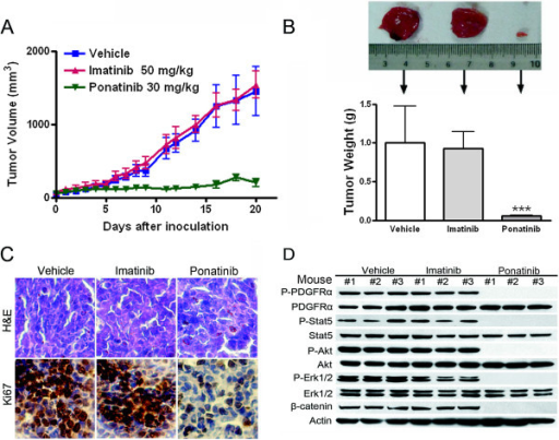 Ponatinib potently abrogates the growth of imatinib-resistant neoplastic cells expressing T674I FIP1L1-PDGFRα in nude mouse xenografts. (A) BALB/c nu/nu nude mice were subcutaneously inoculated with BaF3-T674I FIP1L1-PDGFRα cells, then randomized into 3 groups (10 animals each) for daily oral administration of vehicle [30% Cremophor EL/ethanol (4:1), 70% PBS], imatinib or ponatinib during days 5–21 after inoculation of cells. The tumor growth curves are plotted. Error bars represent 95% confidence intervals. (B) Dissected tumor xenografts were measured on day 21. ***, P < 0.0001, one-way ANOVA, post hoc comparisons, Tukey's test. Columns, mean; error bars, 95% confidence intervals. Representative tumors removed from mice of each group are shown (upper). (C) Immnunohistochemical analysis with anti-Ki67 and H & E staining of xenograft tissues from mice sacrificed 21 days after tumor inoculation. (D) The signaling of PDGFRα in tumor tissue was inhibited by ponatinib. Whole cell lysates prepared from xenografts of each group were detected by immunoblotting with the indicated antibodies.