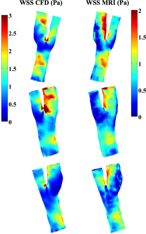 WSS magnitude [Pa] distribution at diastole for 3 carotids calculated using CFD (left side, 0-3 Pa) and directly from 4D flow MRI (right side, 0-2 Pa).