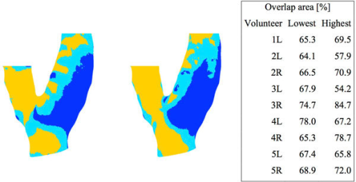 WSS distribution of example carotid bifurcation in 3 bins. Lowest (blue), middle (light blue) and highest WSS tertiles as calculated by CFD (left) and calculated using 4D flow MRI (right). The table on the right shows the overlap areas for the lowest and highest WSS tertile for all volunteers.