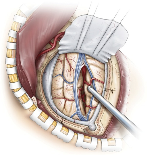 Drawing of the donor internal maxillary artery and the | Open-i