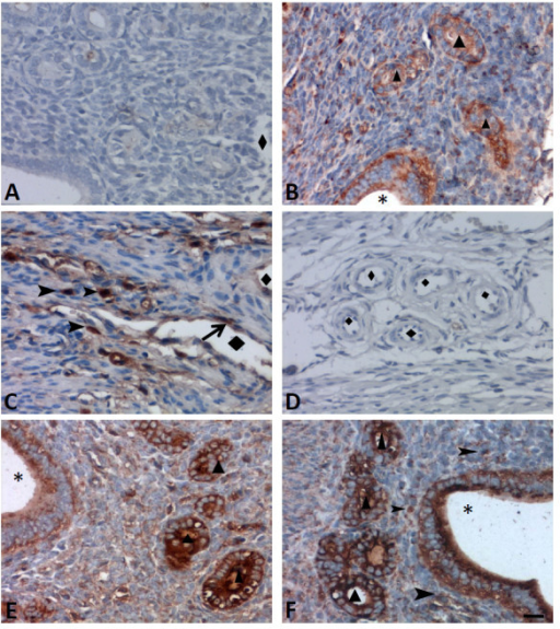 The characteristic and anatomic distribution of PD-1 ligands, PD-L1 and PD-L2, in uteri from 2-year old WT mice was detected by immunohistochemistry. (A) Mouse IgG1 isotype control antibodies showed no positive staining; (B) PD-L1 positive cells were observed in the glandular/luminal epithelium; (C) PD-L1 positive cells were observed in the endothelium and cells infiltrated stroma; (D) The PD-L2 expression was absent in blood capillary; (E) The PD-L2 positive cells were observed in the glandular/luminal epithelium; and (F) PD-L2 positive cells were observed infiltrating the stroma. ▲ indicates the glandular epithelium; *indicates the luminal cavity; ◆ indicated blood capillary. The arrows indicate positive endothelial cells and arrow head showed infiltrated cells that are positive for PD-L1 or PD-L2. Scale bar = 20 μm. N = 4 of each group.