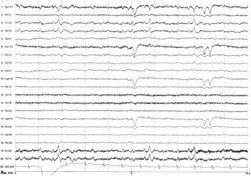 Long-term EEG shows interictal epileptiform discharges in the left anterior temporal region.
