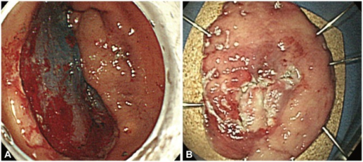 (A) The lesion was resected using endoscopic submucosal dissection with an insulation-tipped knife. (B) The resected tumor was 40×35 mm in size.