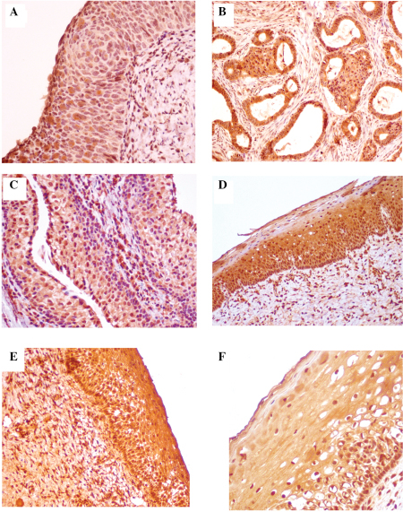 Immunohistochemical analysis of the expression of insulin-like growth factor-1 (IGF-1) in cervical cells in various steps of carcinogenesis. (A) Low-grade squamous intraepithelial lesion; magnification, ×100. Ex+1. (B) HPV infection and high-grade intraepithelial lesion (H-SIL); magnification, ×100. Ex+1. (C) Preinvasive squamous cell carcinoma of the cervix (H-SIL); magnification, ×100. Ex+3. (D) Squamous cell carcinoma of the cervix (G2); magnification, ×100. Ex+3. (E) Cervix and cervical canal; magnification, ×100. The expression of IGF-1 is +1 in parabasal layers of the epithelium, whereas it is negative in the superficial layers of the epithelium. (F) Squamous cell carcinoma (G2) of the cervix, keratinizing type; magnification, ×50. Ex+3.