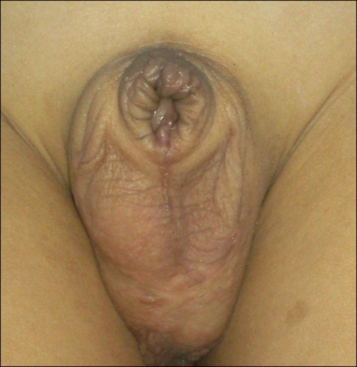 The amputated glans penis 1 year after circumcision. The penis is disfigured and with severe meatal stenosis.
