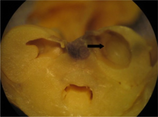 Visceral alteration in the fetus from a rat treated with vehicle.Notes: Dilated renal pelvis (arrow). Vehicle = 20 nM 4-(2-hydroxyethyl)-1-pipera-zineethanesulfonic acid (HEPES) buffer containing 1% sodium citrate.