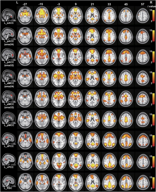 Resting-state functional connectivity maps of the left cingulate subregion in healthy controls with global signal regression. Only positive connectivity map of each cingulate subregion is depicted. Multiple comparisons are corrected by a false discovery rate (FDR) with a significant threshold of P<0.05. aMCC, anterior mid-cingulate cortex; dPCC, dorsal posterior cingulate cortex; L, left; pACC, pregenual anterior cingulate cortex; pMCC, posterior mid-cingulate cortex; R, right; RSC, retrosplenial cortex; sACC, subgenual anterior cingulate cortex; vPCC, ventral posterior cingulate cortex.