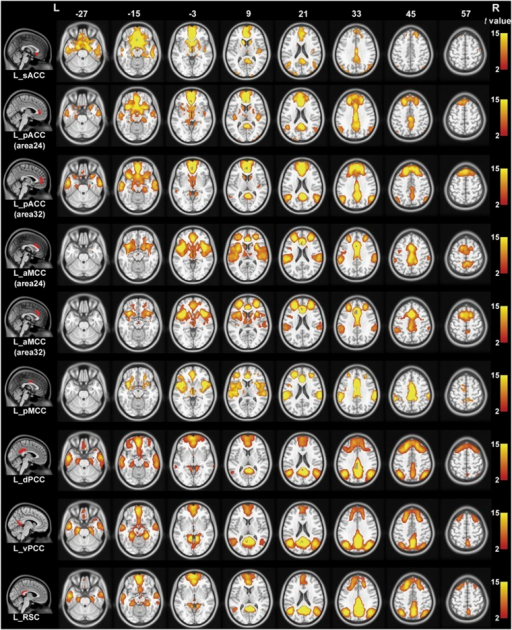 Resting-state functional connectivity maps of the left cingulate subregion in schizophrenia controls with global signal regression. Only positive connectivity map of each cingulate subregion is depicted. Multiple comparisons are corrected by a false discovery rate (FDR) with a significant threshold of P<0.05. aMCC, anterior mid-cingulate cortex; dPCC, dorsal posterior cingulate cortex; L, left; pACC, pregenual anterior cingulate cortex; pMCC, posterior mid-cingulate cortex; R, right; RSC, retrosplenial cortex; sACC, subgenual anterior cingulate cortex; vPCC, ventral posterior cingulate cortex.