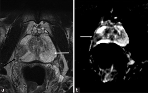 A 55-year-old man with Gleason 7 (4 + 3) prostate cancer. (a) Axial T2-weighted image (T2WI) shows the normal hyperintense T2 signal in the peripheral zone (white arrow) from the high water content with cancer (black arrow) appearing as an area of low signal on T2WI. (b) Apparent diffusion coefficient map at the same level showing low signal from the restricted diffusion at the site of cancer (arrow)