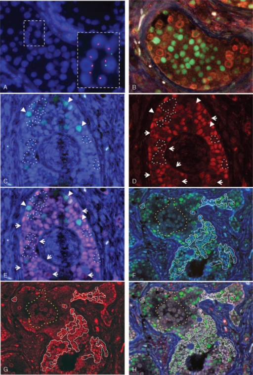 FISH and immunofluorescence analyses of the gonad. (A) The gonadal tissue is composed of 45,X and 46,XY cells. The inset highlights the presence of 45,X cells. Red and green signals denote X and Y probes, respectively. (B) Triple color immunofluorescence for SOX9 (testicular lineage marker: green), SRY (Y-chromosome marker: red), and FOXL2 (ovarian lineage marker: light blue) in a normal appearing seminiferous tubule, consisting of Sertoli cells (nuclear SOX9 signals) and germ cells (membranous/cytoplasmic SRY signals). FOXL2-positive cells are absent. (C) Dual color immunofluorescence for SOX9 (green) and FOXL2 (light blue) in a gonadoblastoma comprising pre-granulosa cells only expressing FOXL2 (light blue nuclei) and pre-Sertoli/granulosa cells expressing both SOX9 and FOXL2 (nuclear emerald green signals indicated by arrowheads). (D) Immunofluorescence for SRY (red) showing that nuclear SRY is present in most pre-granulosa cells, and absent in a minority of pre-granulosa cells (surrounded by white dotted lines). Pre-Sertoli/granulosa cells expressing both SOX9 and FOXL2 (see C) are also devoid of nuclear SRY signals (indicated by arrowheads in C, D, and E). These confirm the presence of 45,X cells. The membranous/cytoplasmic SRY signals indicate the localization of germ cells (indicated by arrows). (E) Triple color immunofluorescence: (C) SOX9 and FOXL2 merged with (D) SRY. The predominant population of sex cord epithelial cells expresses both FOXL2 and SRY (purple nuclei) indicating pre-granulosa cells with a 46,XY karyotype. It is conceivable that a minority of pre-granulosa cells have a 45,X karyotype (surrounded by white dotted lines) because of lack of SRY expression. Some pre-Sertoli/granulosa cells also have a 45,X karyotype (arrow heads), because they express both SOX9 and FOXL2 but lack SRY expression (nuclear emerald green signals). (F) Dual color immunofluorescence for SOX9 and FOXL2 demonstrating abnormally shaped seminiferous tubules composed of mature Sertoli cells only expressing SOX9 (green nuclei) and pre-Sertoli/granulosa cells expressing both SOX9 and FOXL2 (emerald-green nuclei surrounded by white dashed lines). An aggregate of germ cells is surrounded by a yellow dotted line. (G) Immunofluorescence for SRY reveals that the cells expressing FOXL2 have nuclear SRY positivity (red nuclear signals surrounded by white dashed lines). The membranous/cytoplasmic SRY immunoreactivity clarifies an aggregate of germ cells (surrounded by yellow dotted lines). (H) Triple color immunofluorescence: merged SOX9 and FOXL2 (F) with SRY (G). The presence of Sertoli cells with SOX9 expression (green nuclei) and co-localization of SRY signals in the nuclei of pre-Sertoli/granulosa cells with both SOX9 and FOXL2 expression (nuclear white, pink or light green nuclei surrounded by white dashed lines) indicate that the abnormally shaped seminiferous tubule is a male structure, showing incomplete testicular differentiation. FISH = fluorescence in situ hybridization.