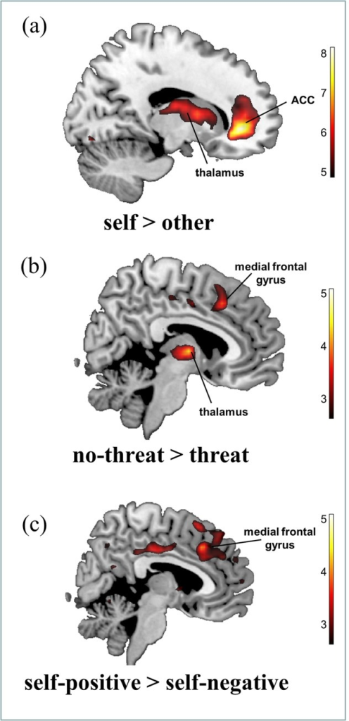 Group activation differences, whole brain analysis: a) activations for the within-subjects contrast self > other.b) Activations for the between-subjects contrast no-threat > self-threat (negative feedback on the intelligence test result) c) Activations for the between-subjects contrast positive traits > negative traits (self-reference only). All activations are shown for a threshold of p < 0.001 uncorrected, reporting only clusters that have p < 0.05 corrected on cluster level.