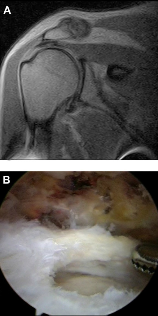 Magnetic resonance imaging and arthroscopic findings of a right shoulder full-thickness tear of the supraspinatus tendon with retraction. (A) Proton density–weighted oblique coronal view using an E-scan Opera Esaote 0.2-T scanner. (B) Standard posterior viewing portal with 30° arthroscope evaluating the rotator cuff following arthroscopic debridement.