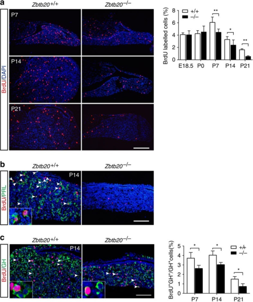 Impaired postnatal cell proliferation in Zbtb20−/− pituitary.(a) Immunohistochemical staining of BrdU was performed on E18.5 to P21 pituitaries of Zbtb20+/+ and Zbtb20−/− littermates to assess cell proliferation. The percentage of BrdU-positive cells in anterior lobe was determined from counting serial sections of each pituitary. E18.5: n=20 sections from four animals; P0: n=26 sections from seven animals; P7: n=31 sections from five animals; P14: n=34 sections from five animals; and P21: n=27 sections from four animals. Values represent mean±s.e.m. *P<0.05, **P<0.01 (Student's t-test). (b,c) Immunohistochemical double staining of BrdU (red) and PRL (b) or GH (c) (green) was performed on the pituitary at the indicated age (P7 to P21). Arrowheads indicate double-positive cells, and inserts show the enlargement of double-positive cells. The percentage of double-positive cells among the GH-positive cells was determined by counting serial sections of each pituitary. P7: n=8 sections from three animals; P14: n=12 sections from three animals; and P21: n=9 sections from three animals. Values represent mean±s.e.m. *P<0.05 (Student's t-test). Scale bar, (a) 200 μm; (b,c) 100 μm.