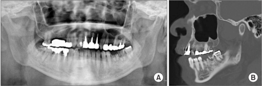 Imaging findings. A. Original panoramic X-ray findings. Periapical lesions are observed in the apical area of the right mandibular third molar, left mandibular first and second molars, and left maxillary central incisor. B. Computed tomography findings (sagittal section image). Cyst-like images are observed in the apical area of the left maxillary lateral incisor and second molar.