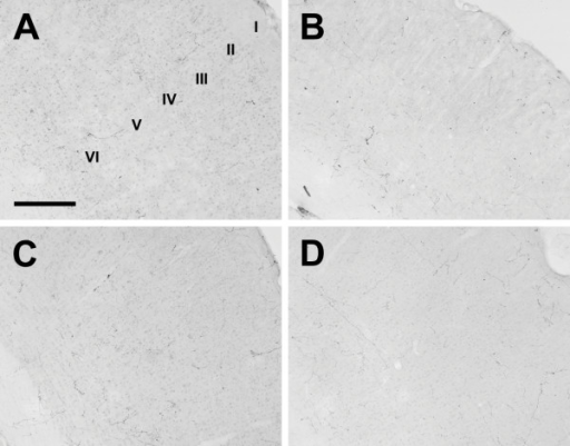 Cerebral cortex. Photomicrographs of orexin A fibers in the somatosensory cortex of the Long-Evans rat (A), grass rat (B), Syrian hamster (C), and degu (D). I-VI: Cortical layers 1–6. Scale bar = 300 μm.