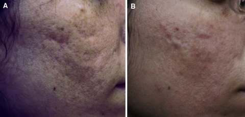 "Case study 1. Photographs before (a) and 1 year after (b) the final treatment of a 21-year-old patient who underwent three injectable poly-l-lactic acid treatment (dermal lipoatrophy) sessions for facial ""scarring"" caused by chronic acne"