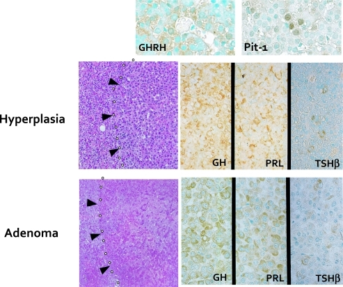 Experimental model for GH-producing pituitary adenoma induced in the hGHRH transgenic mice. The pituitary tumor cells in hGHRH transgenic mice are immunohistochemically positive for GH, PRL and TSH. They are also positive for GHRH and Pit-1 [23].