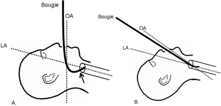 Diagram Of Intubation in addition Wave Energy Density further Location Of Pelvic Girdle moreover Test In Cartoon as well Tissue Engineering Diagram. on detailedresult