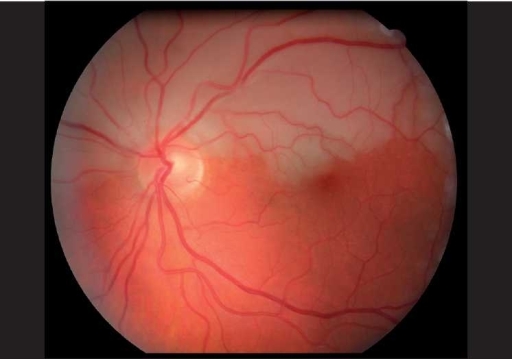 Color fundus photo of the left eye demonstrating left superior hemiretinal artery occlusion