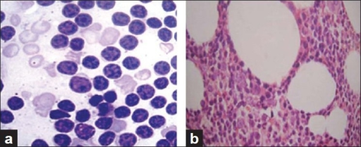 (a) Lymphoid infiltrate in BMA. (b) Lymphoid infiltrate in BMB (H and E, 40×)