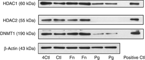 Protein levels of histone deacetylases 1 and 2 (HDAC1 and HDAC2) and DNA methyltransferase (DNMT1) are differentially expressed in gingival epithelial cells (GECs) in response to Porphyromonas gingivalis (Pg) and Fusobacterium nucleatum (Fn). GECs were stimulated with P. gingivalis (Pg) or F. nucleatum (Fn) at multiplicities of infection (MOIs) of 100:1 for 24 h. Nuclear proteins were extracted, denatured at 70 °C for 10 min, and separated by NuPAGE electrophoresis system. Nuclear extracts of Hela cells probed with individual primary antibody were used as positive controls. The data are derived from two different cell donors tested in duplicate.