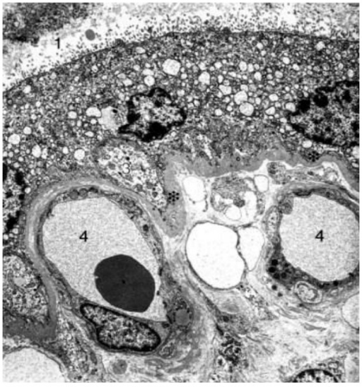 Electron micrograph of a chorionic villous human placenta. Picture depicts the intervillous space (1) and the placental barrier formed by the syncytiotrophoblast (2), a discontinuous cytotrophoblast (3), basal laminae (asterix), conective tissue, and fetal vessels (4).