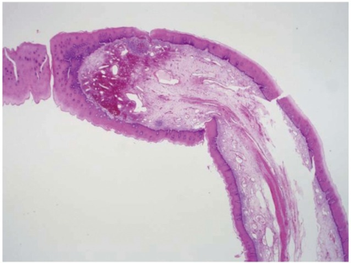 histopathological features of the fibrovascular polyp open i