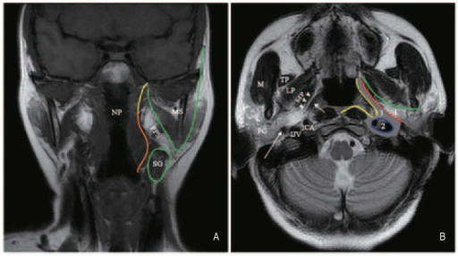 Anatomy of the parapharyngeal space (PPS), as depicted   Open-i