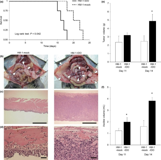 Pathogenic roles of indoleamine 2,3-dioxygenase (IDO) in the tumor progression of ovarian cancer in vivo. Stable clones of IDO-overexpressing (HM-1-IDO) or control vector-transfected (HM-1-mock) OV2944-HM-1 cells were i.p. transplanted into syngeneic B6C3F1 mice as a model of peritoneal dissemination of ovarian cancer. (a) Survival rate of mice transplanted with HM-1-IDO or HM-1-mock cells. There was a significant difference between the two groups by log–rank test (P = 0.042). (b) Macroscopic views of peritoneal dissemination in mice transplanted with HM-1-mock and HM-1-IDO cells on day 14. Arrows indicate disseminated tumor nodules. Representative results from six independent mice in each group are shown. (c, d) Histopathological findings of disseminated tumors on the peritoneum in mice transplanted with HM-1-mock and HM-1-IDO cells on day 14. Original magnification, ×100 (c) and ×400 (d). Bar = 500 μm (c) and 50 μm (d). (e, f) Total tumor weight and ascites volume were evaluated in mice transplanted with HM-1-mock and HM-1-IDO cells on days 11 and 14. All values represent mean ± SD. *P < 0.05, HM-1-mock versus HM-1-IDO.