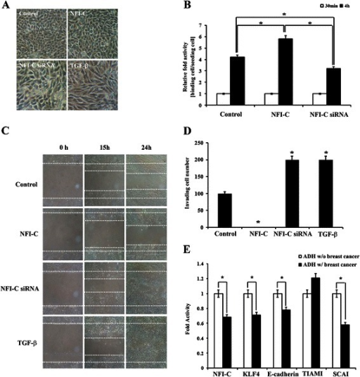 Effects of NFI-C overexpression and inactivation on morphology, adhesion, migration, and invasion of breast cancer cells. (A) Morphology of MCF10A cells when transfected with NFI-C-expressing or NFI-C-siRNA constructs, or treated with TGF-β. Images obtained using phase-contrast microscopy (Magnification: 100×). (B) Cell adhesion was assessed in MCF7 cells transfected with NFI-C-expressing or NFI-C-siRNA constructs. Data are presented as the mean ± SD of triplicate experiments. (C) Migration was analyzed by wound healing assays in MCF7 cell transfected with NFI-C-expressing or NFI-C-siRNA constructs or treated with TGF-β (Magnification: 400×). (D) The invasion capacity of MCF7 cells, which were transfected with NFI-C-expressing or NFI-C-siRNA constructs, or treated with TGF-β was determined by matrigel-coated transwell assays. Average cell counts from representative fields for each condition are given as mean ± S.D. (E) The effect of NFI-C on EMT of breast cancer cells was analyzed using gene expression data collected from atypical ductal hyperplasia with or without breast cancer in the Gene Expression Omnibus (GEO) database (GSE 2429). The mean and standard variants were calculated from four biological replicates for both activity and mRNA levels of NFI-C, KLF4, E-cadherin, TIAM1 (invasion activator), and SCAI (invasion suppressor). * denotes values significantly different from the control (P < 0.01). ADH: Atypical ductal hyperplasia.
